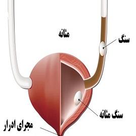 درمان سنگ مثانه همراه با علائم مشکل در شروع ادرار و درد در شکم
