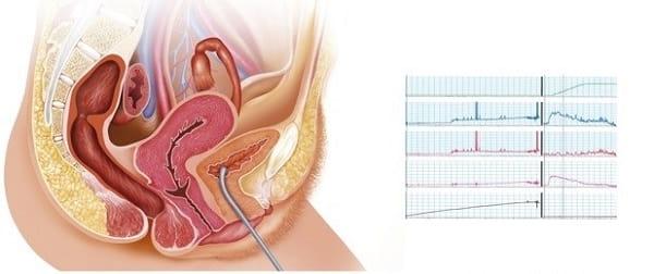 نوار مثانه یا تست اورودینامیک چگونه انجام میشود؟