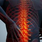بررسی مشکلات اسکلتی عضلانی