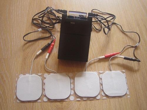 تحریک الکتریکی